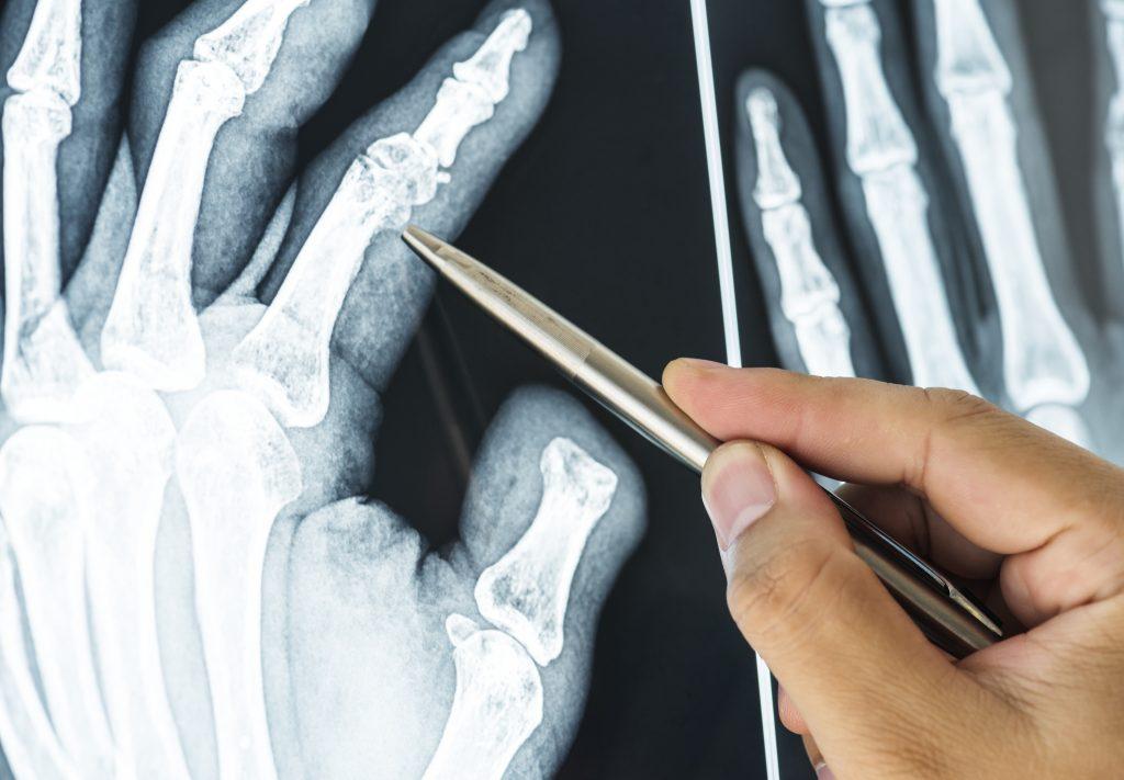 Broken Bones Injury Lawyer in Mississippi